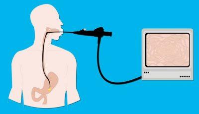 Videoendoscopia – o investigaţie pentru sănătatea ta.  Poate depista probleme care nu pot fi descoperite prin investigaţii radiologice