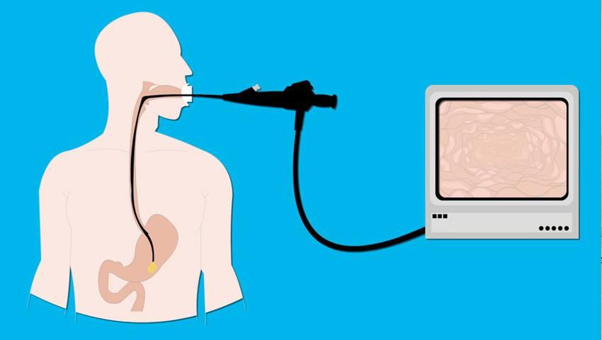 Foto: Videoendoscopia – o investigaţie pentru sănătatea ta.  Poate depista probleme care nu pot fi descoperite prin investigaţii radiologice