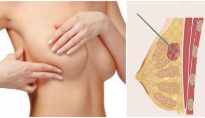 Adenofibromul mamar: tumoarea glandelor mamare care afectează femeile tinere