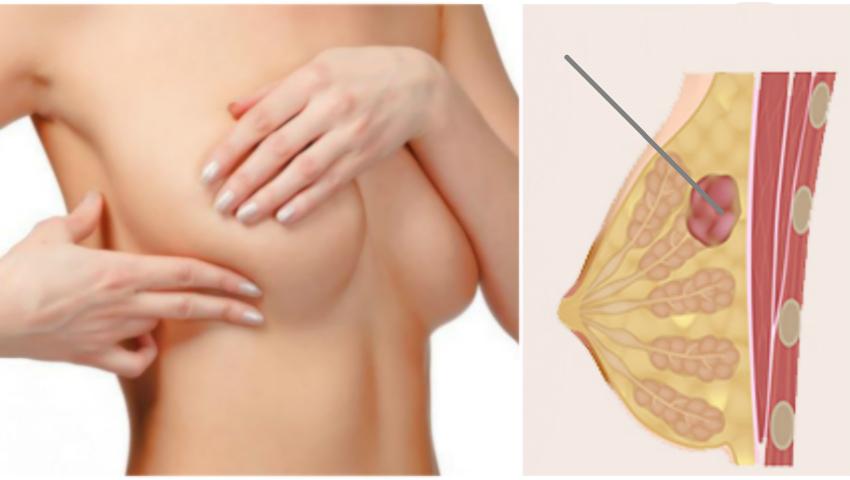 Foto: Adenofibromul mamar: tumoarea glandelor mamare care afectează femeile tinere