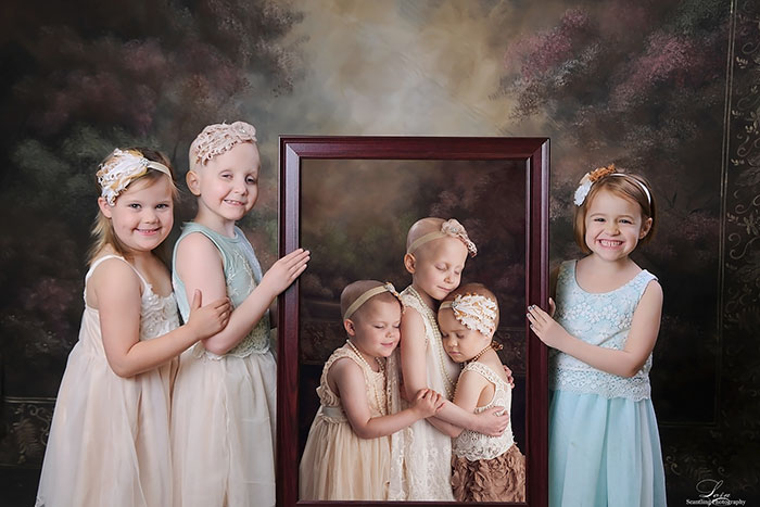 childhood-cancer-survivors-recreate-photo-scantling-photography-1-58bfb4f7947e7__700