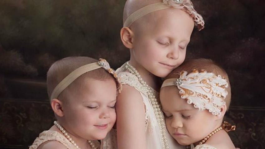 Foto: Un pictorial cu trei fetițe bolnave de cancer a devenit viral pe internet!
