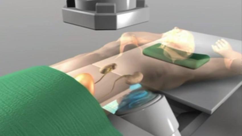 Foto: Litotripsia – procedura care te scapă de pietrele la rinichi mai eficient decât ceaiurile diuretice