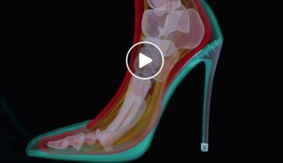 Cum este afectat piciorul când porți tocuri înalte? Vezi video
