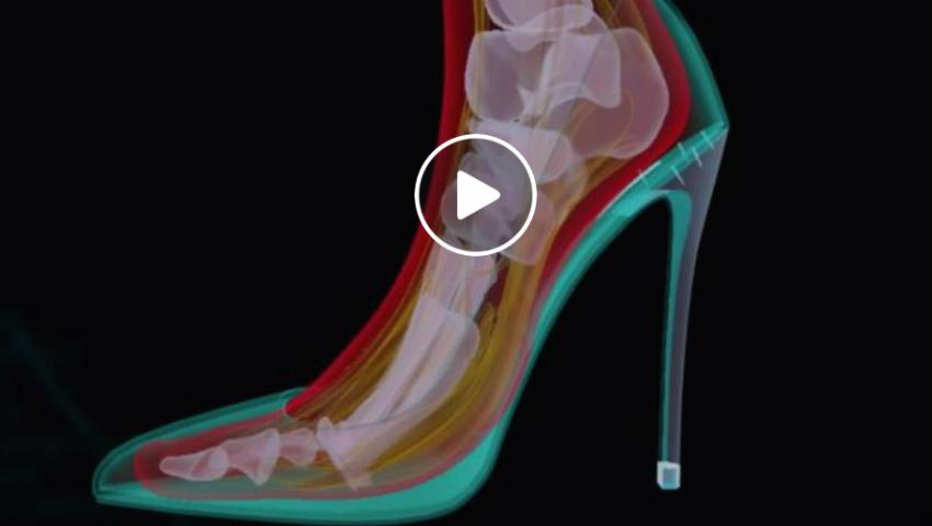 Foto: Cum este afectat piciorul când porți tocuri înalte? Vezi video
