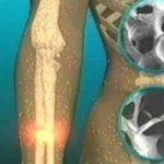 Foto: Elimină calciul din organism și favorizează apariția osteoporozei. O consumi în fiecare zi fără să știi la ce riscuri te expui!