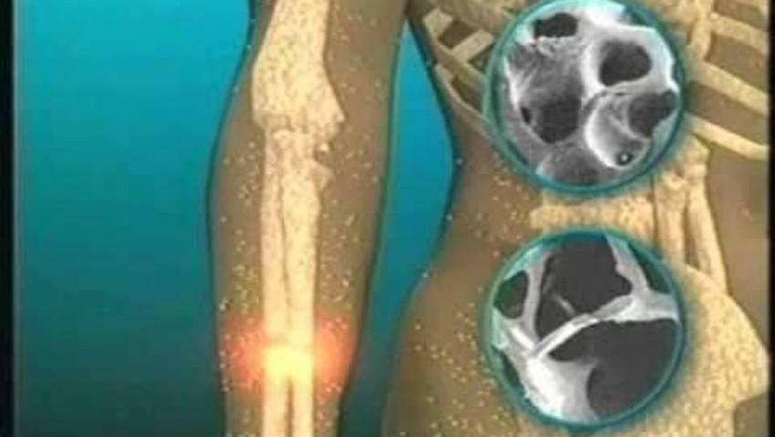 Elimină calciul din organism și favorizează apariția osteoporozei. O consumi în fiecare zi fără să știi la ce riscuri te expui!