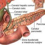 Foto: Află cum poți trata fără medicamente pancreatita cronică, deschinezie biliară, gastrită, constipația cronică