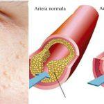 Foto: Semne că ai colesterolul mărit. Vezi ce analize sunt recomandate
