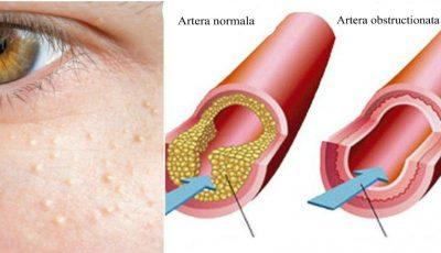 Semne că ai colesterolul mărit. Care sunt cauzele și ce analize sunt recomandate?