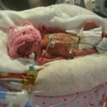 Foto: Un bebeluș a supraviețuit miraculos după ce s-a născut la 24 de săptămâni de sarcină. Vezi cum arată la vârsta de un an!
