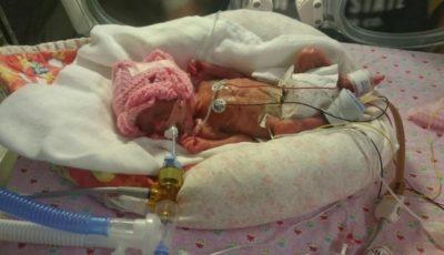 Un bebeluș a supraviețuit miraculos după ce s-a născut la 24 de săptămâni de sarcină. Vezi cum arată la vârsta de un an!