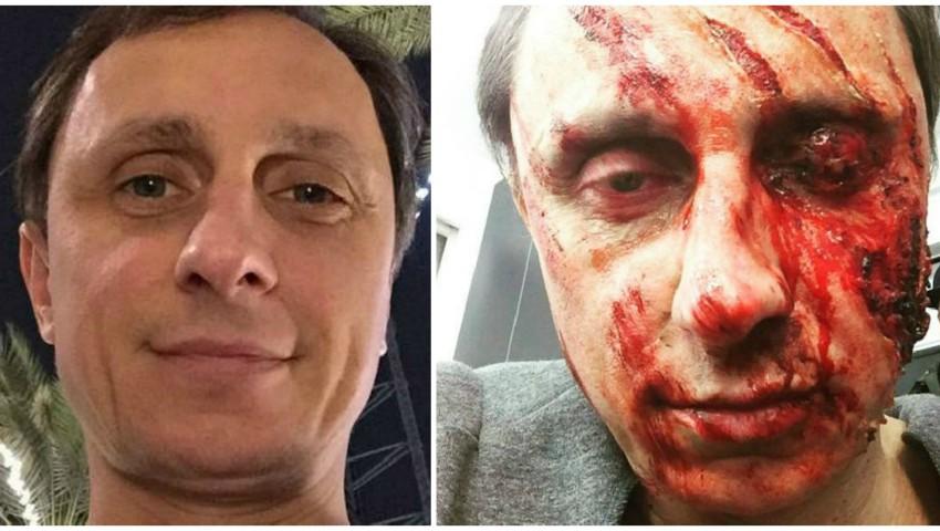 Foto: Vadim Galygin are fața desfigurată