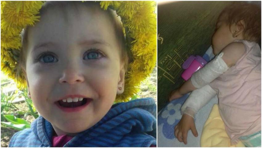 Foto: O fetiță cu arsuri pe 40% din suprafața corpului are nevoie urgent de un tratament cu celule stem!