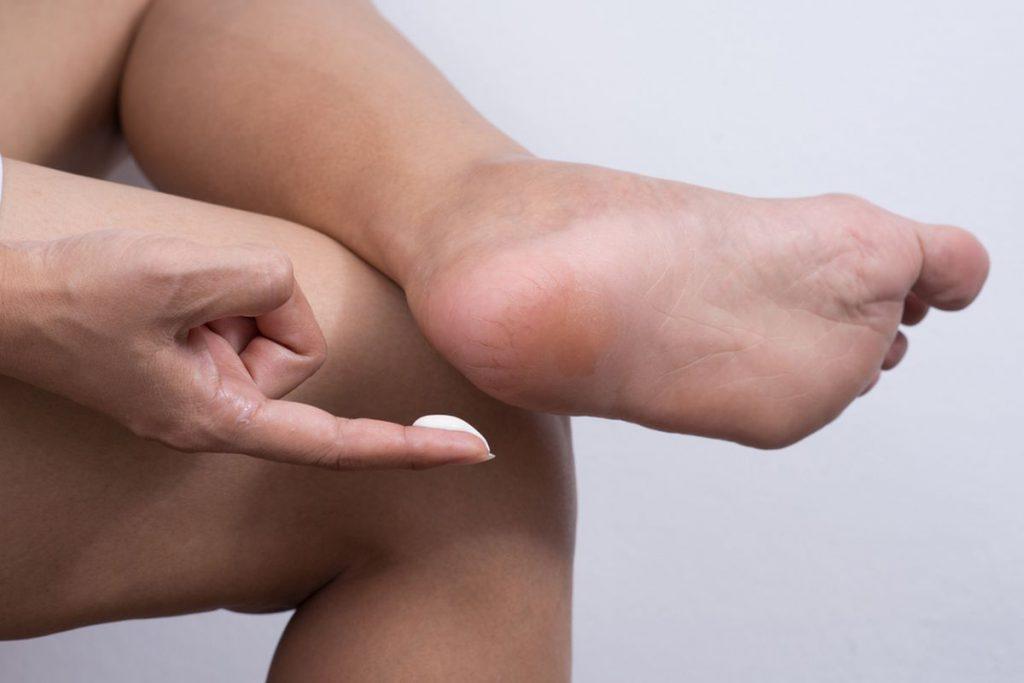 Tratament-pentru-calcaie-crapate-cu-ou-si-unt.-Dupa-prima-utilizare-vei-vedea-schimbari-dramatice-1024x683