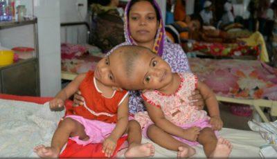Două surori siameze vor suporta o operație complicată de separare în zona capului