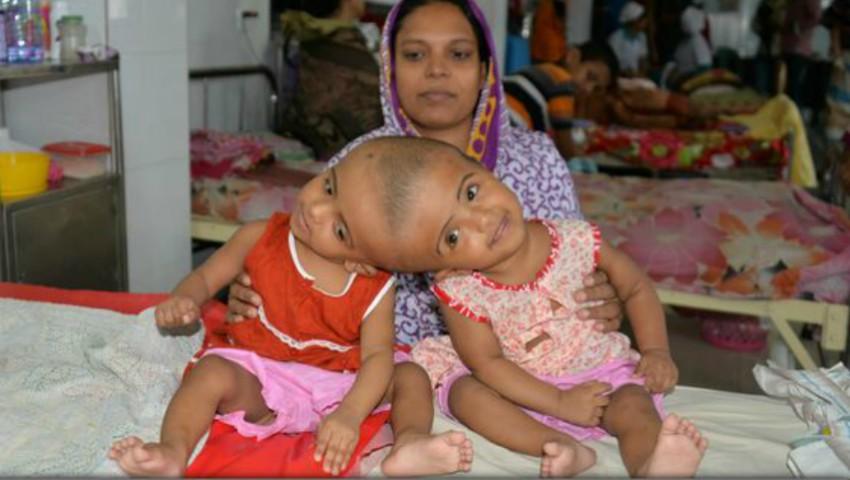 Foto: Două surori siameze vor suporta o operație complicată de separare în zona capului
