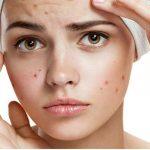 Foto: Cele mai eficiente măști naturale împotriva acneei