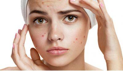 Cele mai eficiente măști naturale împotriva acneei