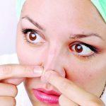 Foto: Remedii naturale pentru punctele negre pe care le poți încerca acasă