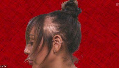 O vedetă a rămas fără păr din cauza extensiilor
