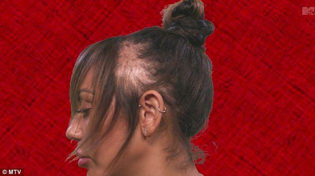 Foto: O vedetă a rămas fără păr din cauza extensiilor