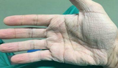 Emoționant. Cum arată mâna unui medic cardiolog după 12 ore de operații