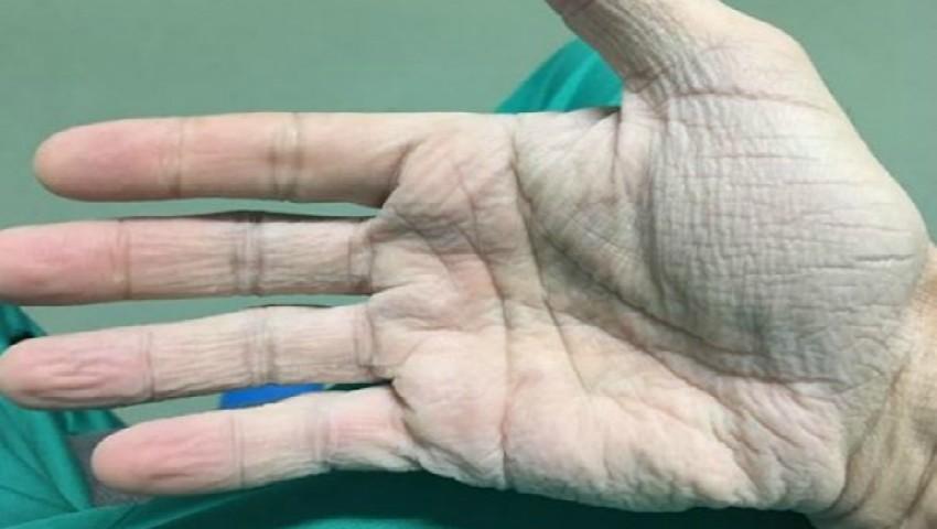 Foto: Emoționant. Cum arată mâna unui medic cardiolog după 12 ore de operații