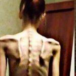 Foto: În 2014, era anorexică şi cântărea 32 de kilograme. Vezi cum arată acum după ce a scăpat de obsesia pentru diete