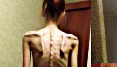 În 2014, era anorexică şi cântărea 32 de kilograme. Vezi cum arată acum după ce a scăpat de obsesia pentru diete