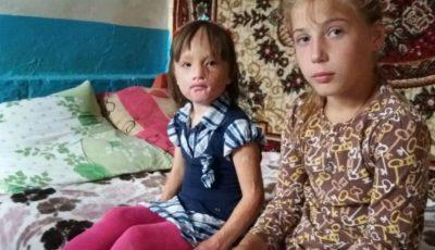 Donează pentru Cristina! Fetița are mare nevoie de ajutor după ce, în urma unui incendiu, a suferit arsuri grave pe față și pe mâini