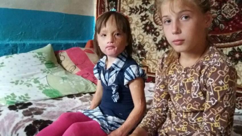 Foto: Donează pentru Cristina! Fetița are mare nevoie de ajutor după ce, în urma unui incendiu, a suferit arsuri grave pe față și pe mâini
