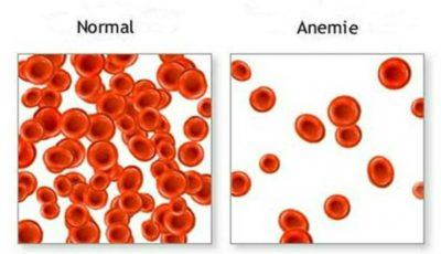 Cum să crești cantitatea de eritrocite din sânge, că să nu suferi de anemie