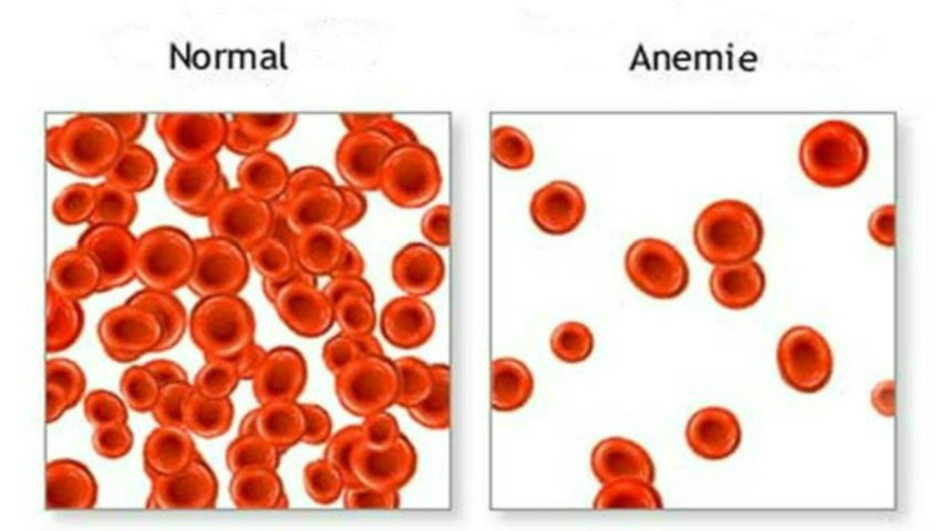 Foto: Cum să crești cantitatea de eritrocite din sânge, că să nu suferi de anemie