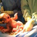 Foto: O mamă a fost salvată de urgență după ce bebelușul, lovind-o puternic în burtă, i-a rupt uterul