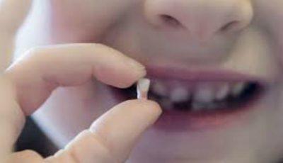 Dinții de lapte sunt prețioși în lupta cu multe boli