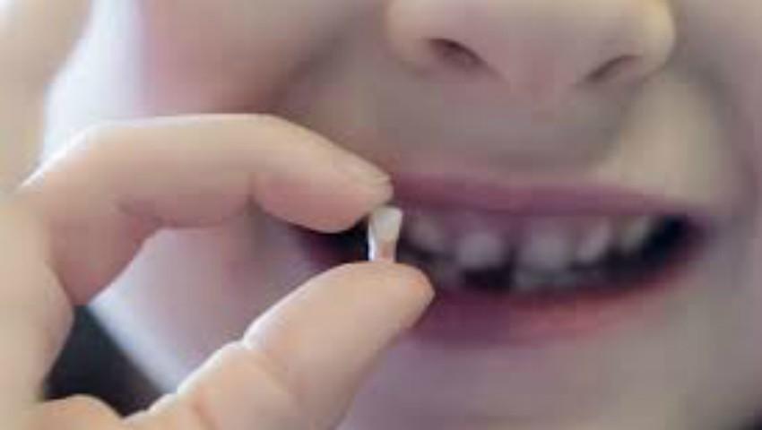 Foto: Dinții de lapte sunt prețioși în lupta cu multe boli