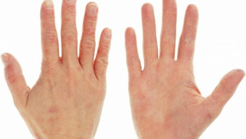 Foto: Semne care tradează lipsa de vitamine din organism. Află și soluția la fiecare