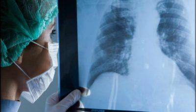 Moldovenii de la sate își vor putea face radiografii pulmonare și mamare mai ușor