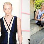 Foto: Celebrul model Lauren Wasser va rămâne și fără piciorul stâng din cauza unui tampon igienic
