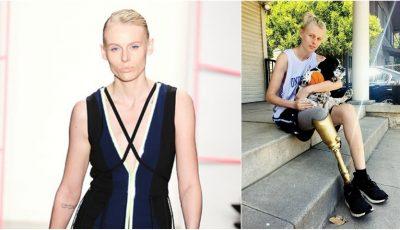 Celebrul model Lauren Wasser va rămâne și fără piciorul stâng din cauza unui tampon igienic