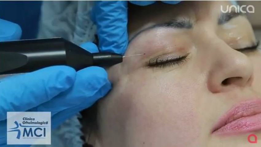 Foto: Vezi cum se fac intervențiile de blefaroplastie: metoda cu lazer și metoda clasică