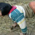 """Foto: A fost numită """"Fetița minge de baschet"""". Povestea uluitoare a unei chineze care și-a pierdut picioarele într-un grav accident"""
