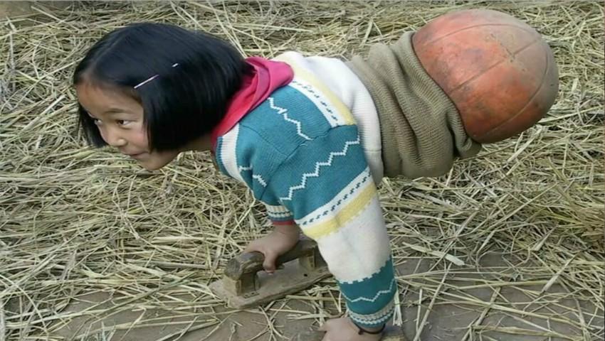"""A fost numită """"Fetița minge de baschet"""". Povestea uluitoare a unei chineze care și-a pierdut picioarele într-un grav accident"""