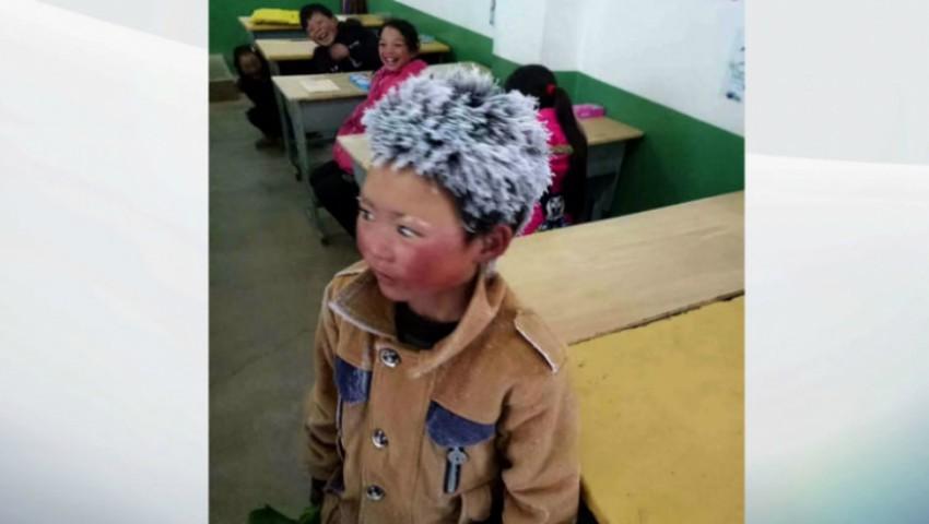 Foto: Cazul emoționant al copilului cu părul de gheaţă