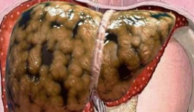 Remediu natural pentru ficat gras