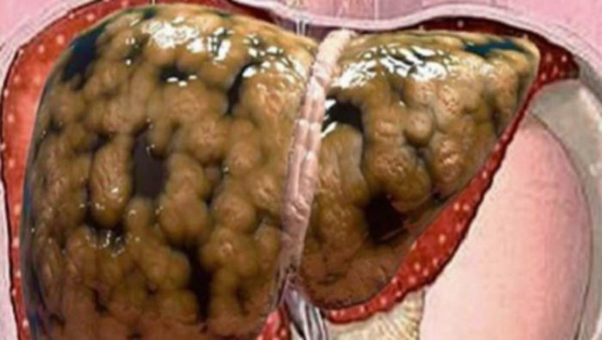 Foto: Remediu natural pentru ficat gras