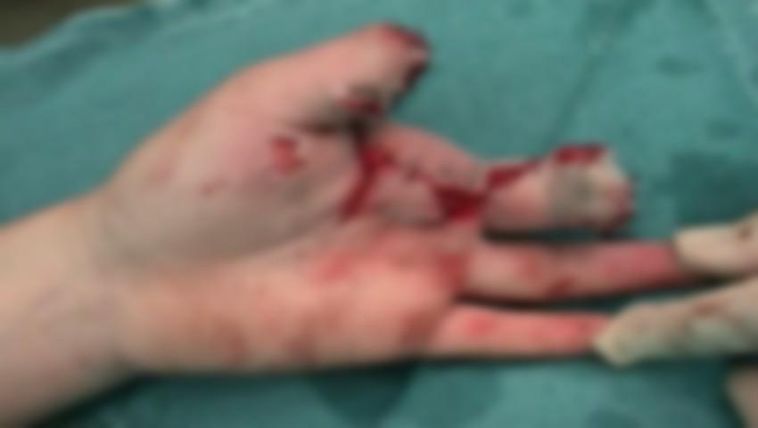 Foto: Un copil din Ștefan Vodă a rămas fără un deget, după ce o petardă i-a explodat în mână