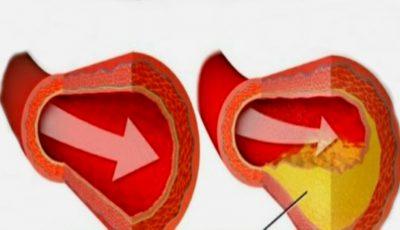 Remediu naturist pentru curățarea arterelor de grăsimi
