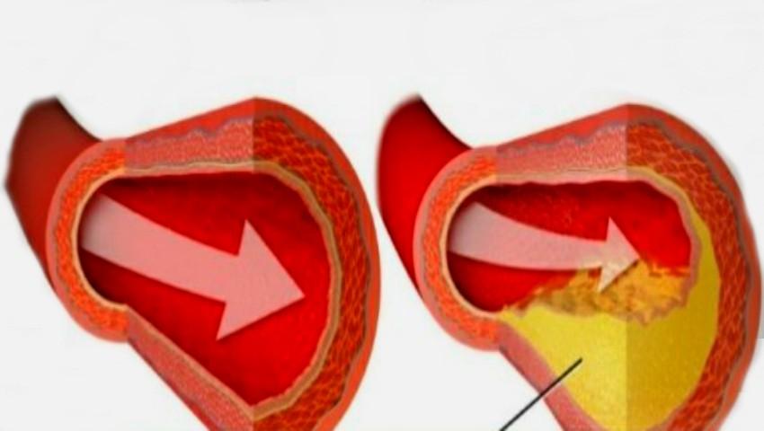 cum să eliminați depozitele de grăsime în artere
